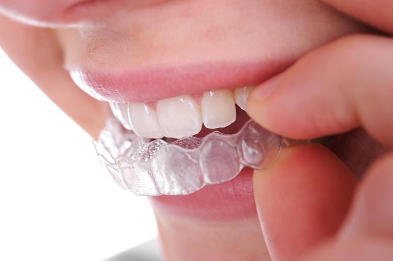 <em>Niềng răng tháo lắp - Phương pháp được giới trẻ ưa chuộng nhất hiện nay</em>