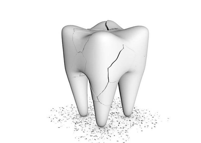 Răng bị va đập, gây chấn thương, bể, sứt mẻ từ đó làm đau nhức răng