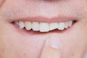 Răng bị vỡ, mẻ mảng nhỏ nên bị mất thẩm mỹ