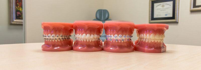 Hiện nay có 3 loại phương pháp niềng răng được ưa chuộng nhất trên thị trường