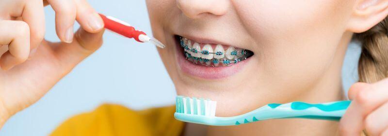 Nên chọn bàn chải mềm và có đầu nhỏ để vệ sinh răng sạch hơn khi niềng