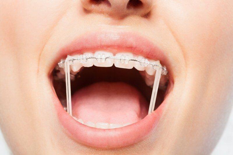 Dây thun niềng răng giúp mang lại kết quả chỉnh nha mỹ mãn