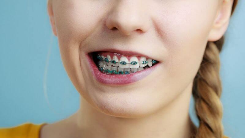 Bệnh nhân có thể cảm giác đau sau quá trình gắn khí cụ lên răng
