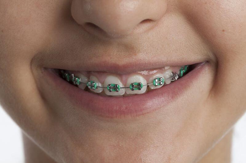 Khi niềng răng thường bác sĩ sẽ chỉ định nhổ răng số 7 và số 4