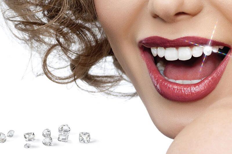 Tự ý tháo đá đính răng tại nhà sẽ để lại nhiều hậu quả nghiêm trọng
