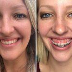 Niềng răng có thể chữa cười hở lợi trong một số trường hợp