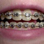 Niềng răng có làm răng yếu đi không phụ thuộc vào rất nhiều yếu tố
