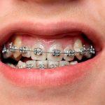 Niềng răng mắc cài kim loại kiểu truyền thống có chi phí rẻ nhất hiện nay