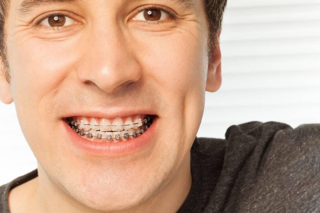 Niềng răng vẫn hiệu quả dù cho đối với người lớn tuy nhiên sẽ khó khăn hơn trẻ nhỏ
