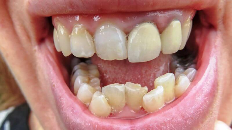 Trường hợp răng mọc chen chúc trên cung hàm