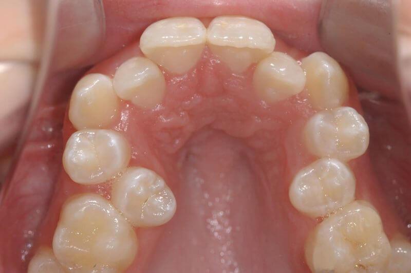 Trường hợp răng mọc chen chúc khi khung hàm quá nhỏ, không đủ không gian