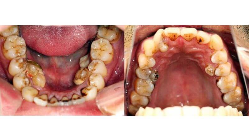 Trường hợp răng mọc nhiều và lòi sĩ