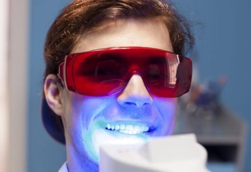 Phương pháp tẩy trắng răng bằng đèn Plasma