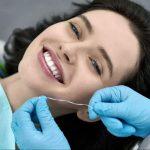 Bác sĩ sẽ tiến hành tháo đá và phục hồi lại hình dáng ban đầu của răng