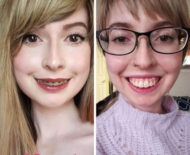 Hình ảnh khách hàng trước và sau khi niềng răng hô
