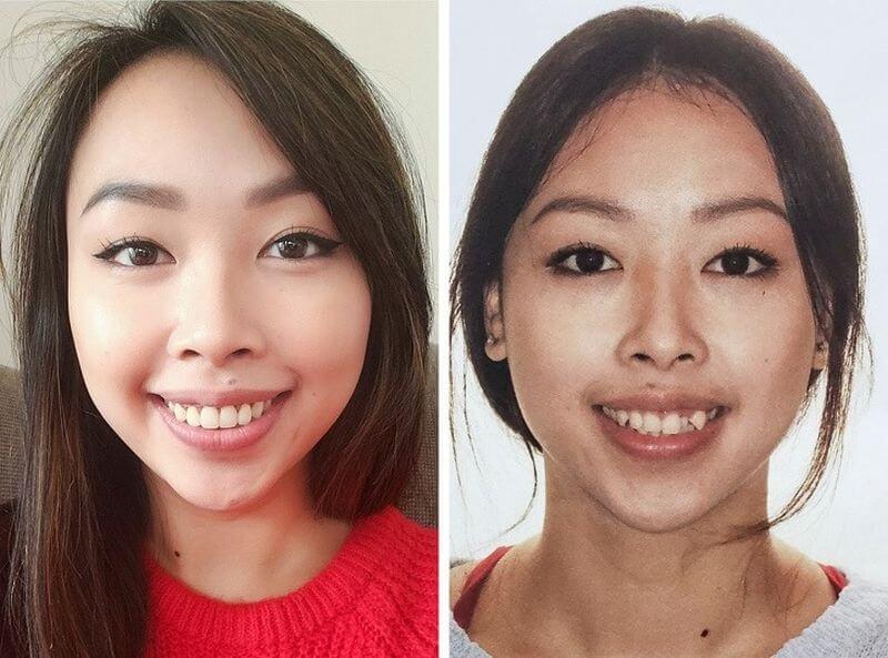 Hình ảnh khách hàng trước và sau khi niềng răng khểnh