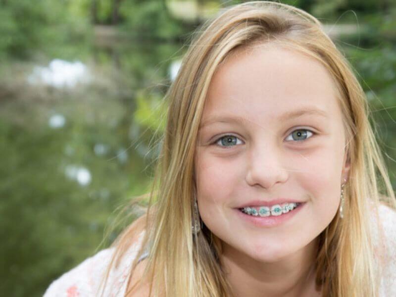 Độ tuổi niềng răng thích hợp nhất theo các chuyên gia là từ 11 - 18 tuổi