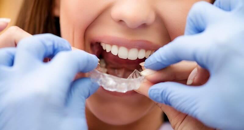 Thường xuyên đeo hàm duy trì khi tháo niềng răng trước thời hạn