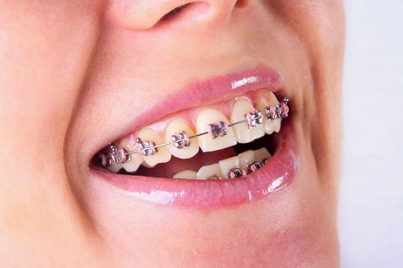 Phương pháp niềng răng mắc cài truyền thống hiệu quả nhất trong việc điều trị răng thưa