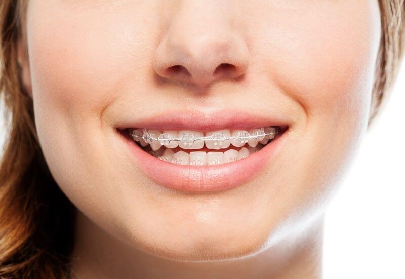 Niềng răng thưa giúp kéo răng khít lại gần nhau, mang lại nụ cười đẹp cho khách hàng