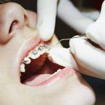 Nếu quá trình niềng răng hiệu quả tốt thì bạn hoàn toàn có thể tháo niềng răng sớm
