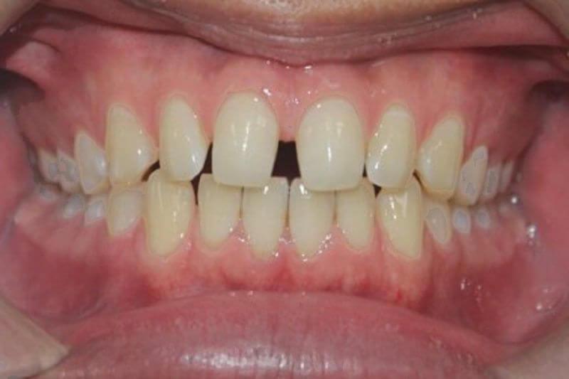 Tình trạng răng mọc thưa và cách xa nhau